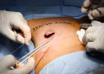 Intervento esangue di ginecomastia, momento della cucitura del bottone areolare.