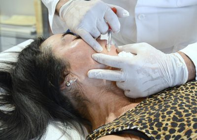 Ridensificazione Dinamica -Filler per correggere le rughe nel viso - Rivitalizzazione e ringiovanimento della pelle.