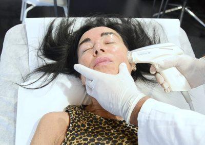 Ridensificazione Dinamica -Radiofrequenza sublativa che genera calore e migliora la produzione di collagene - Rivitalizzazione e ringiovanimento della pelle.